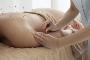 acupuncturist Waterloo Ontario