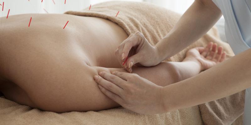 acupuncturist Waterloo Ontario