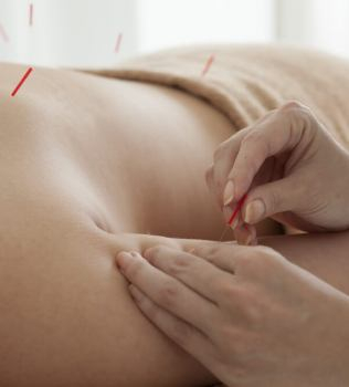 What to Expect From Your First Acupuncture Visit